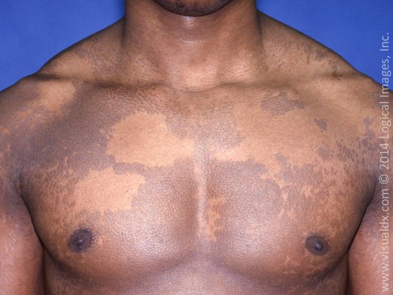 Tinea versicolor | American Academy of Dermatology